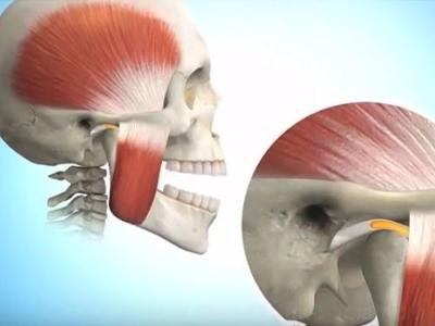 Analisi tridimensionale delle unità funzionali della mandibola