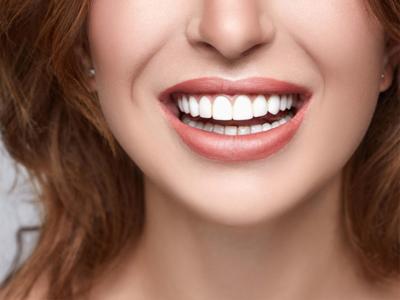 Terapia Ortodontica Linguale
