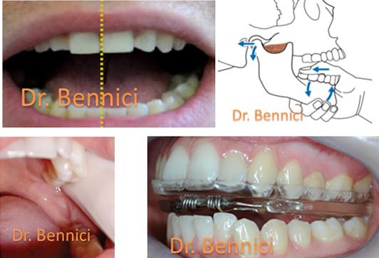 Caso clinico Ortodonzia 2