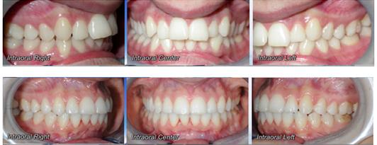 Caso clinico Ortodonzia 2a