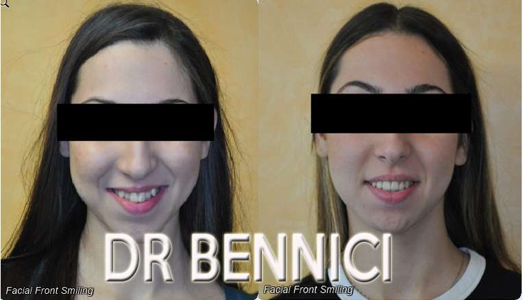 Caso clinico Ortodonzia 1