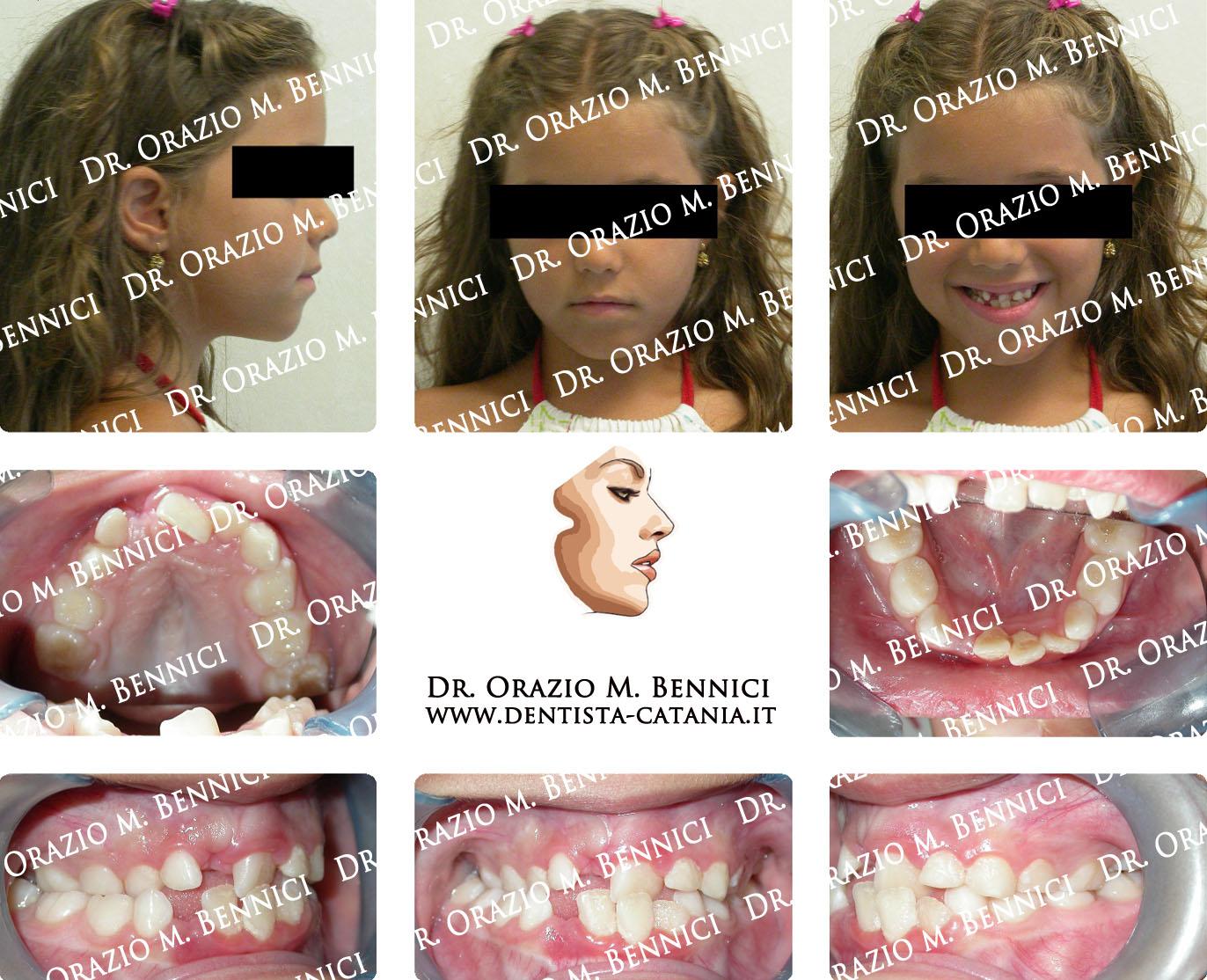 Caso clinico Ortodonzia 10