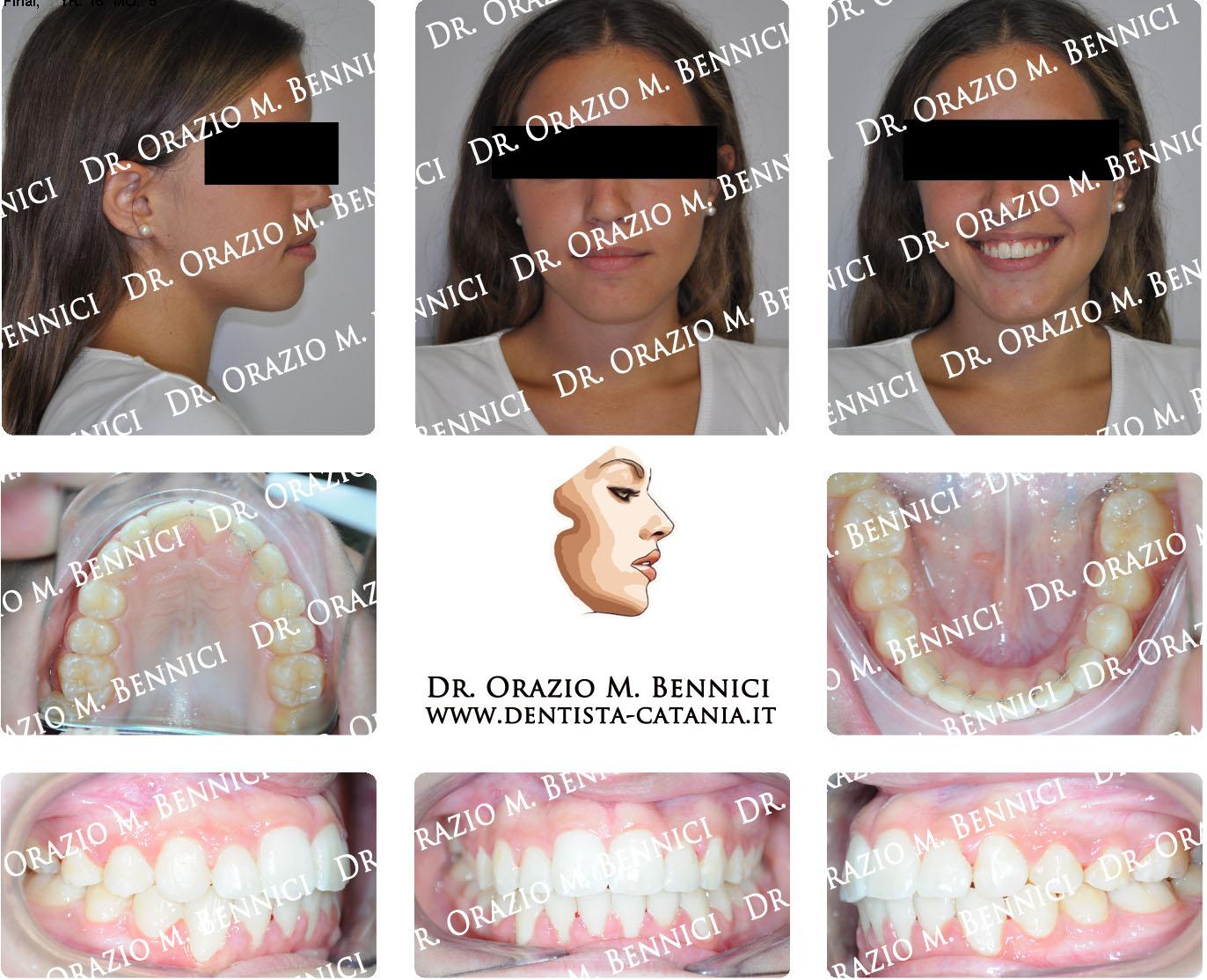 Caso clinico Ortodonzia 10a