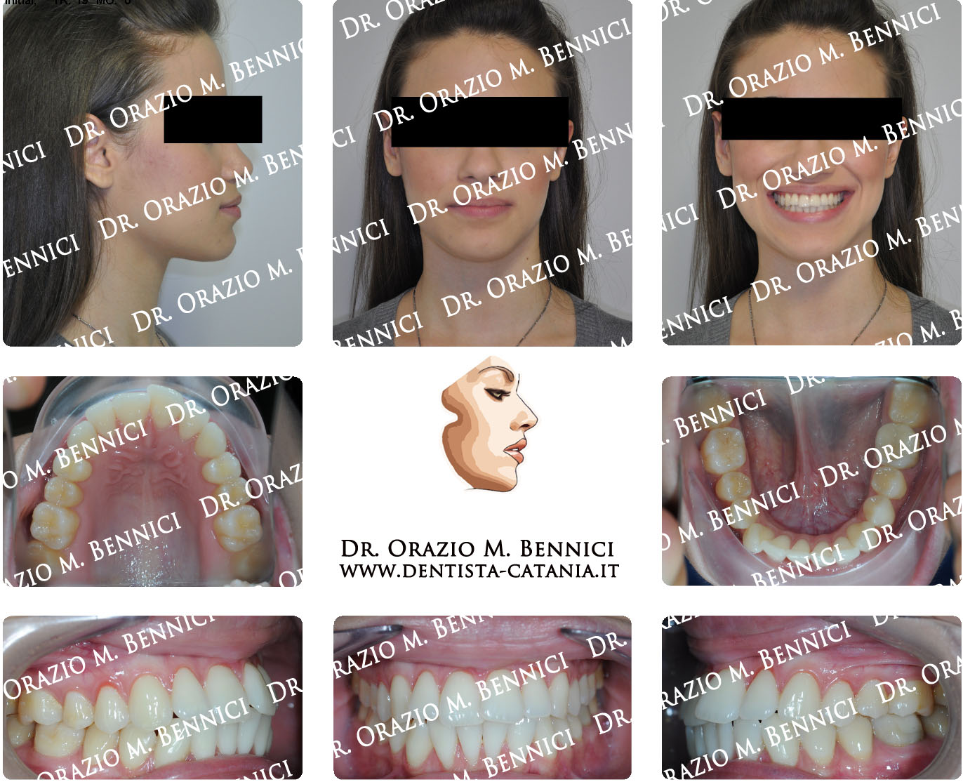 Caso clinico Ortodonzia 11