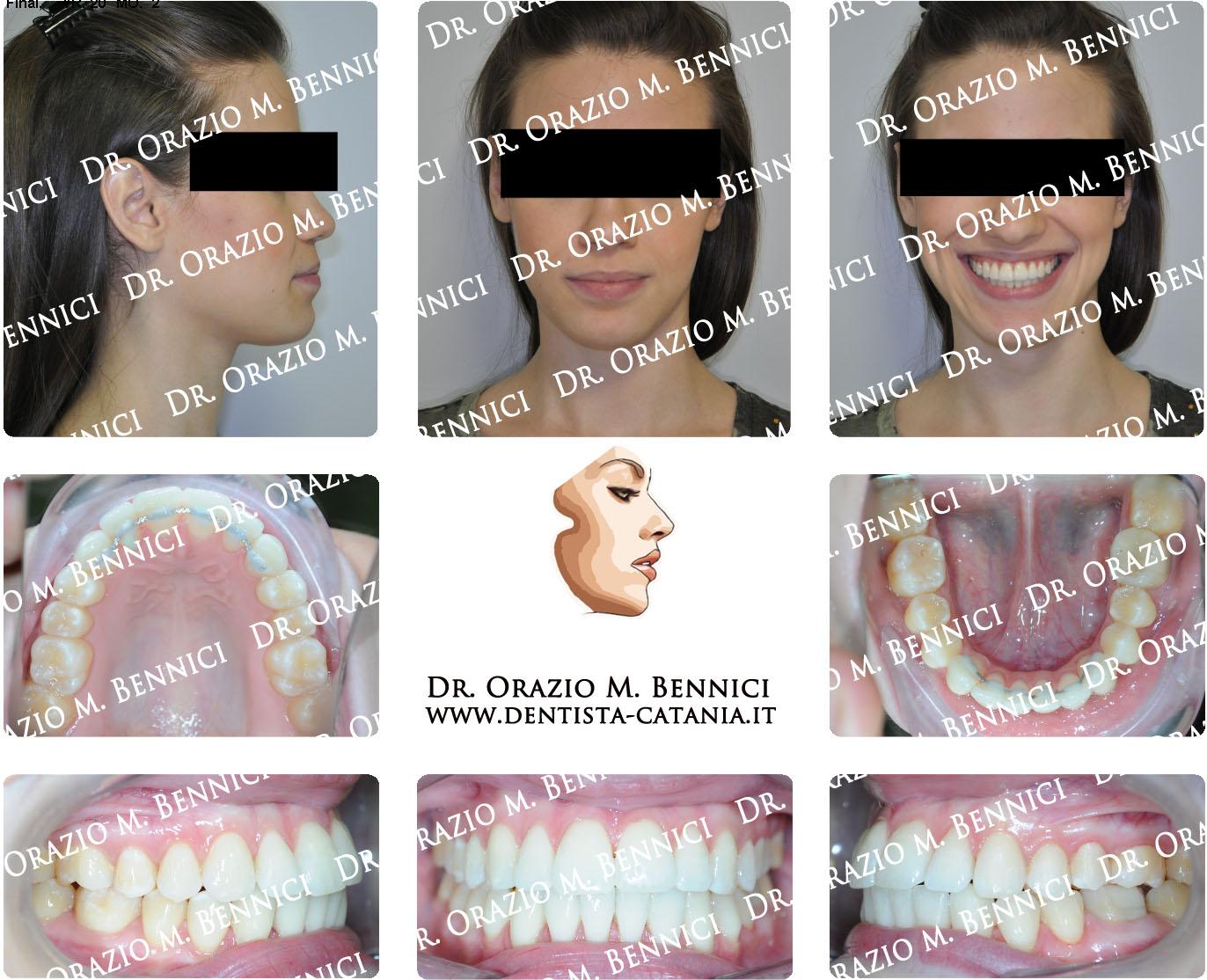 Caso clinico Ortodonzia 11a