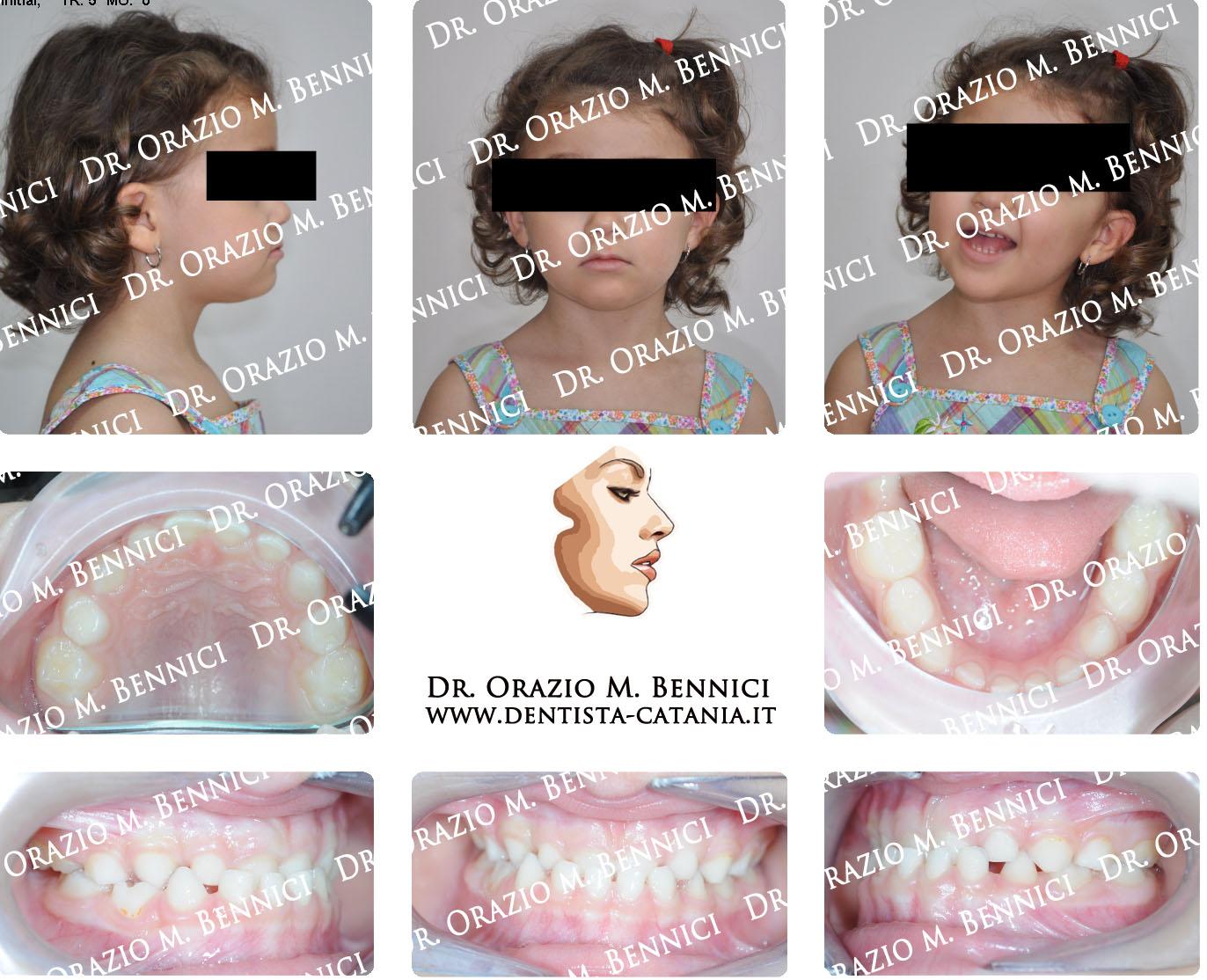 Caso clinico Ortodonzia 12