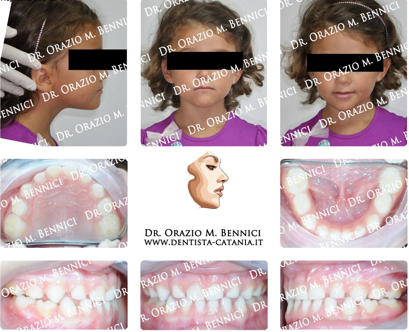 Caso clinico Ortodonzia 12a