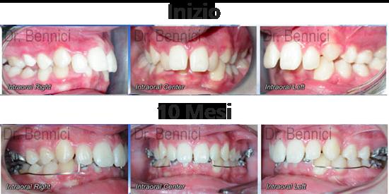Caso clinico Ortodonzia 13
