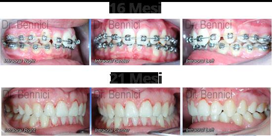 Caso clinico Ortodonzia 13a