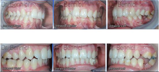 Caso clinico Ortodonzia 14