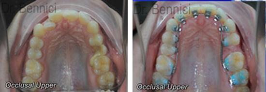 Caso clinico Ortodonzia 14a