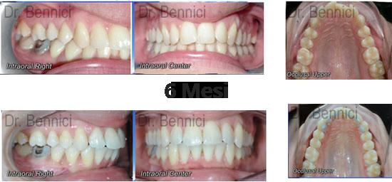 Caso clinico Ortodonzia 15
