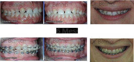 Caso clinico Ortodonzia 16