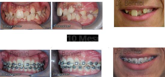 Caso clinico Ortodonzia 17