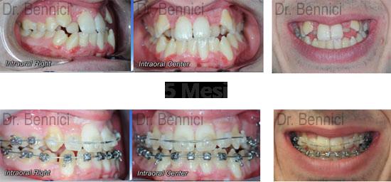 Caso clinico Ortodonzia 18