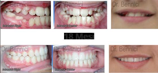 Caso clinico Ortodonzia 19