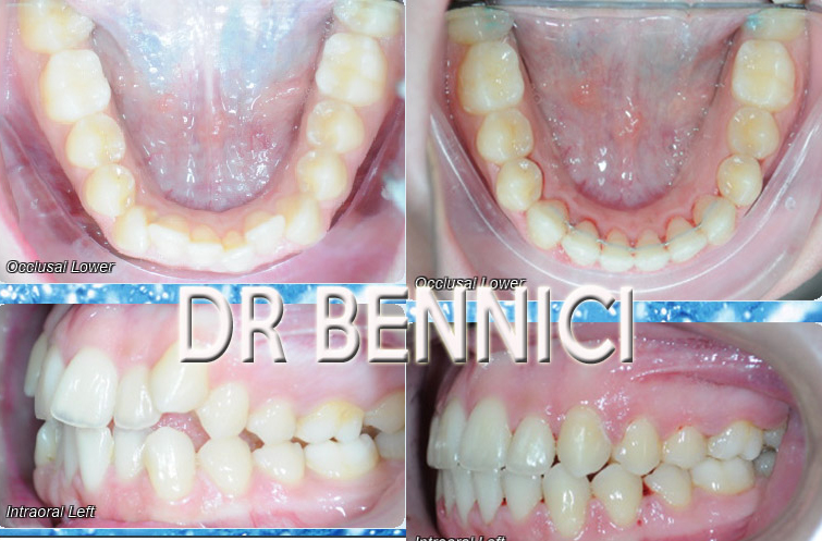 Caso clinico Ortodonzia 1a