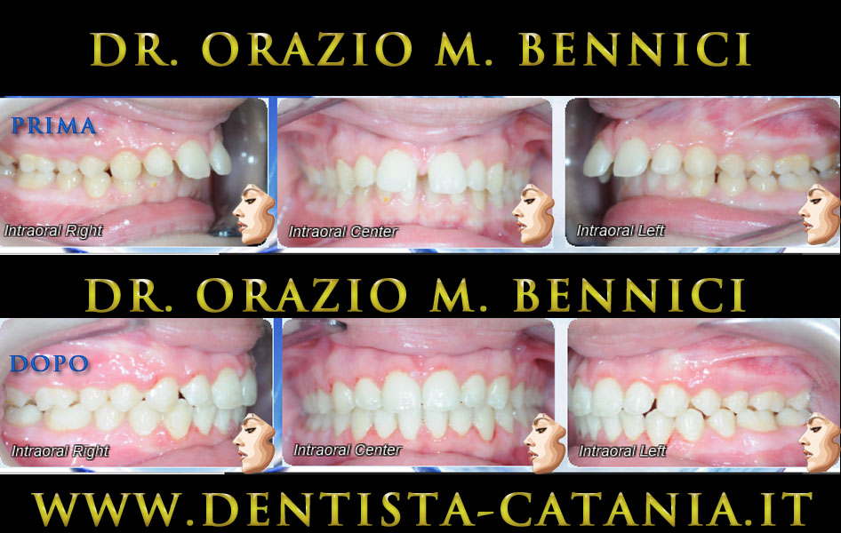 Caso clinico Ortodonzia 4