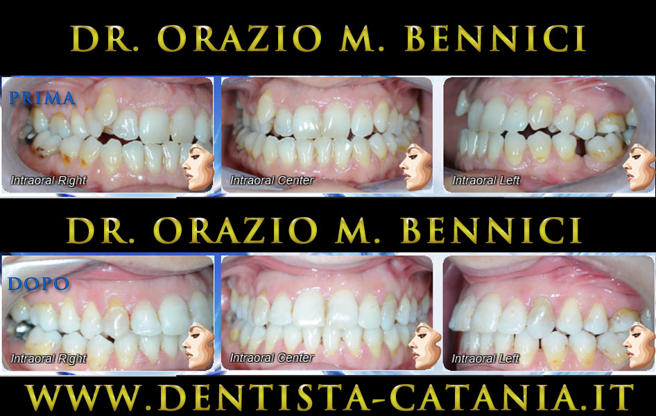 Caso clinico Ortodonzia 5