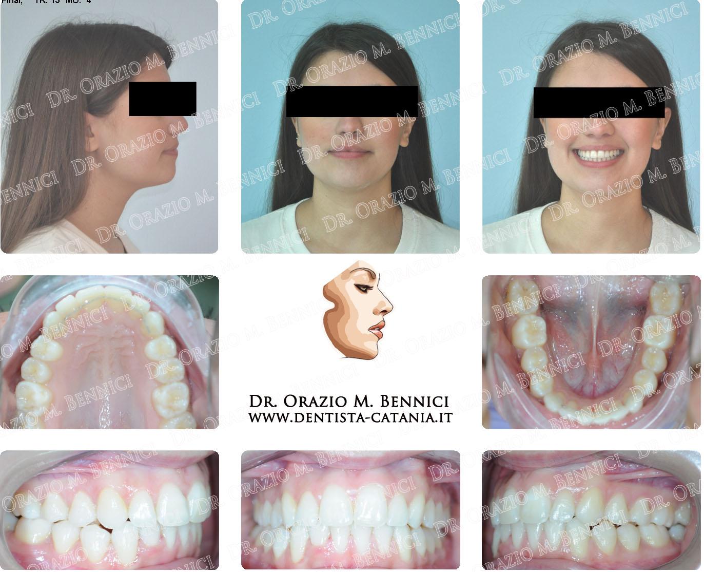 Caso clinico Ortodonzia 6a
