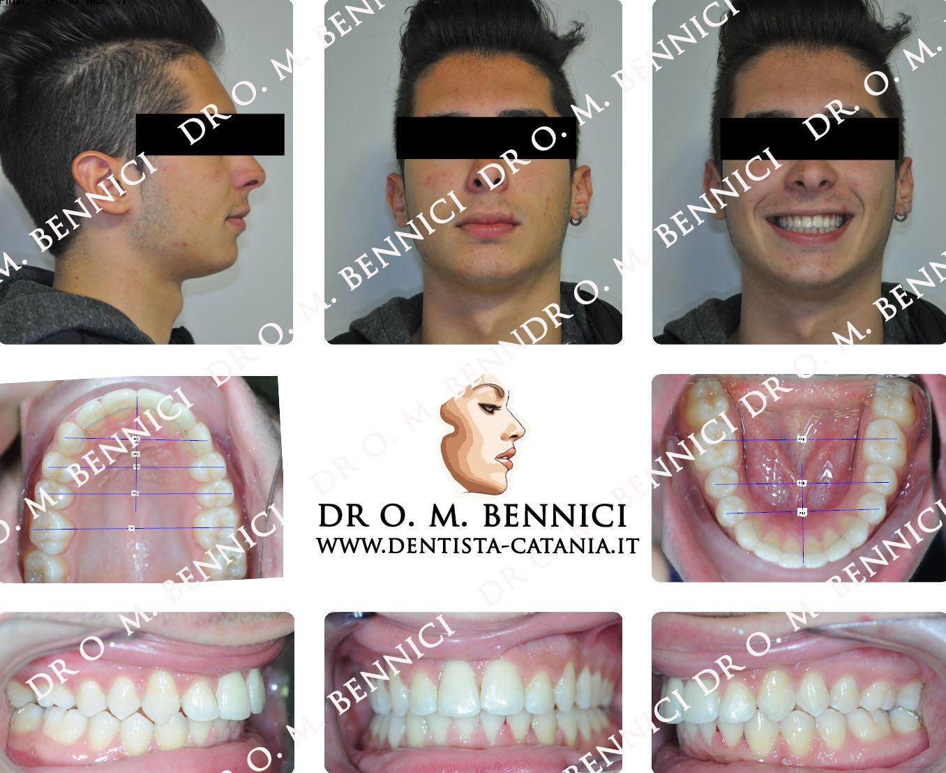 Caso clinico Ortodonzia 7a