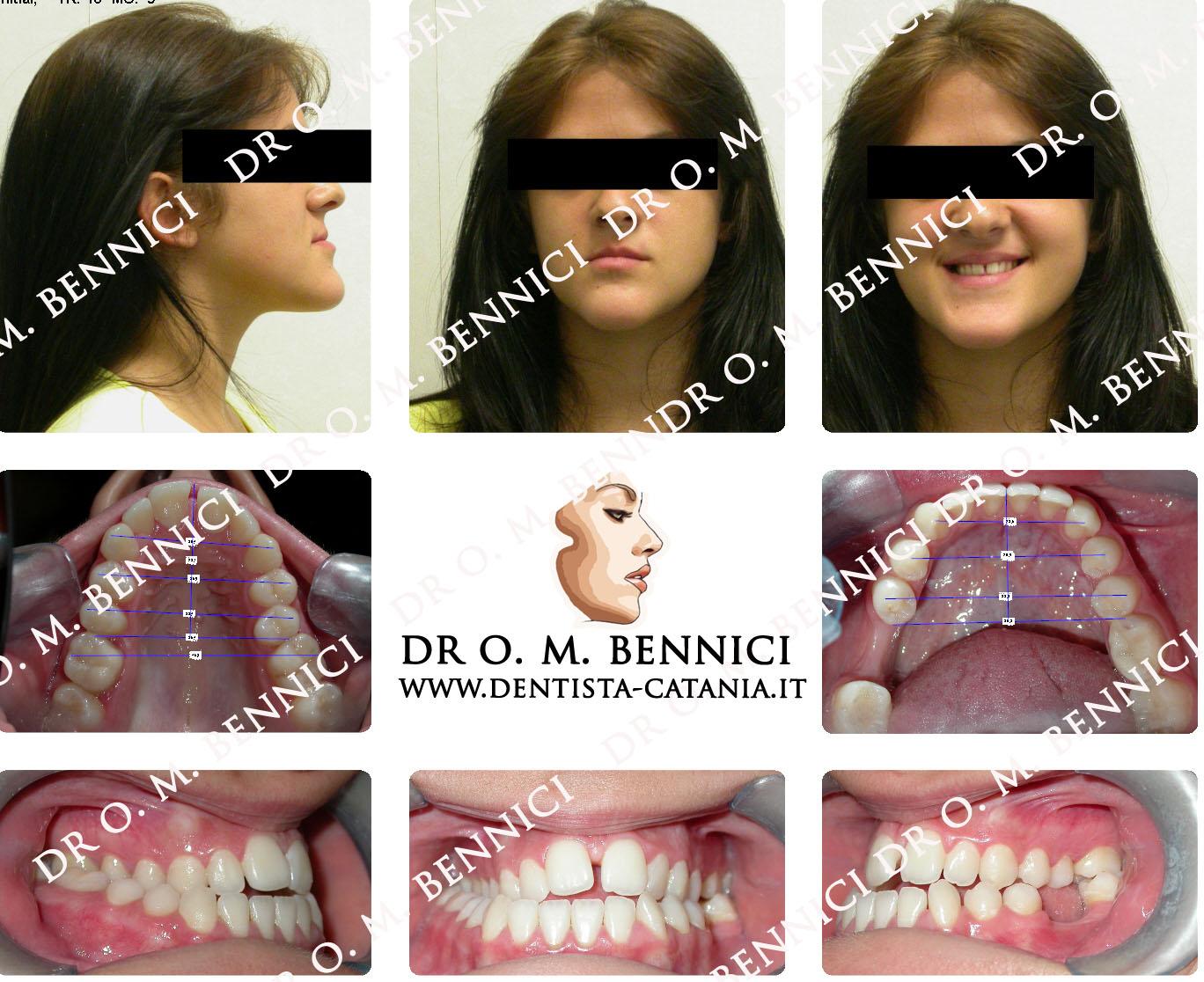 Caso clinico Ortodonzia 8