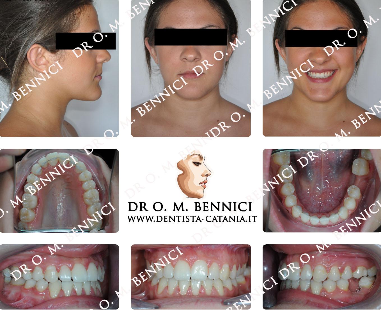 Caso clinico Ortodonzia 8a