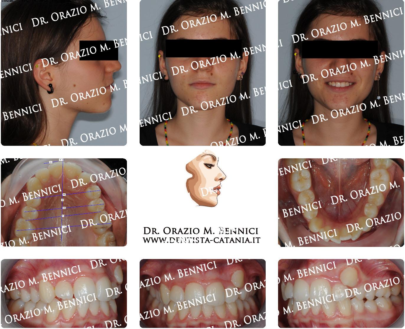 Caso clinico Ortodonzia 9
