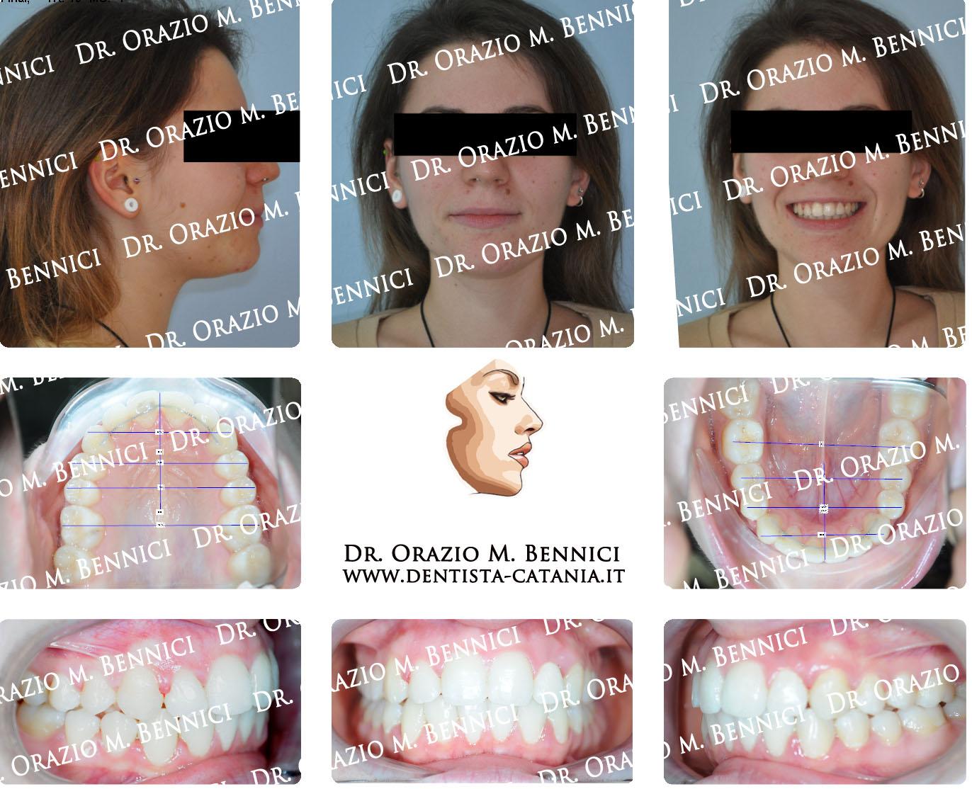 Caso clinico Ortodonzia 9a