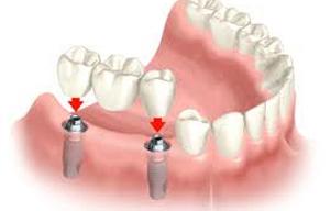 Implantologia Catania