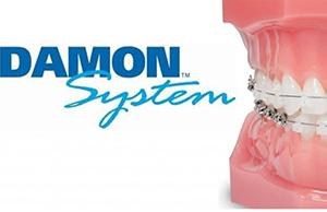 Ortodonzia Damon System Catania