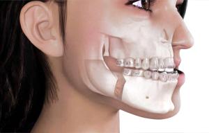 Ortodonzia prechirurgica Catania