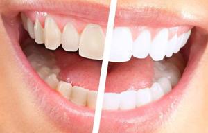 Sbiancamento dentale Catania